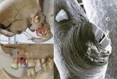 Kranium med boring i tand