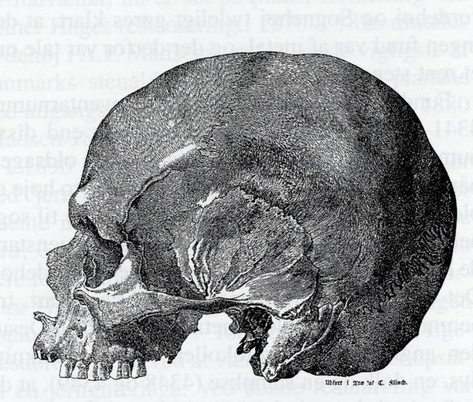 Kranie fra Jordehøj